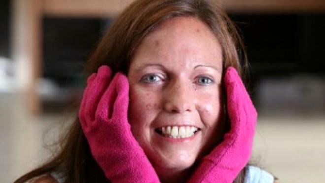 TIP dilinde Raynaud fenomeni olarak bilinen rahatsızlığa yakalanan bu kadın sürekli eldivenle dolaşmak zorunda.