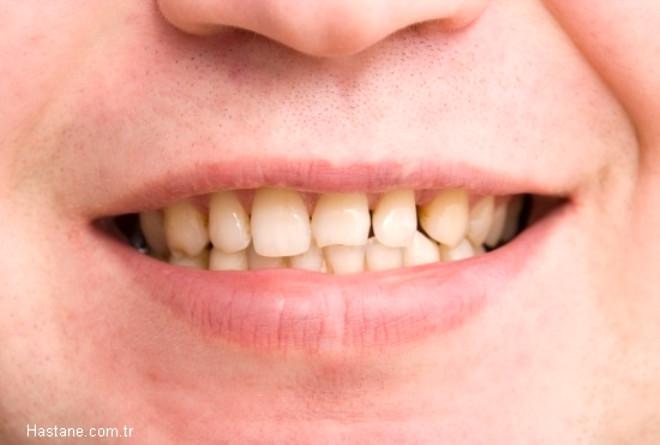 Dişlerde kırılma: Dişleri sıkma ve gıcırdatma sonucunda ön dişlerin köşelerinde arka dişlerin çıkıntılı kısımlarında mikro çatlaklar oluşur. Röntgen ile saptanamayan bu çatlaklar zamanla büyüyerek dişlerin kırılmasına neden olur.