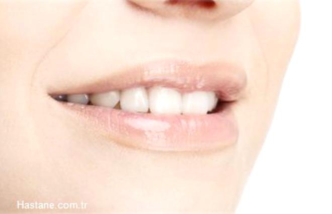 Dişlerinizi çok zorlamayan yiyecekler yemeye dikkat edin. Lokmaları çekerek kopartmak, dişlere sert maddeler değdirmek dişlerinizin yapısını bozar.
