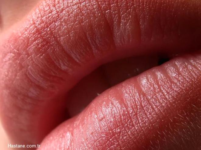 Yüz güzelliğinde en önemli tamamlayıcı unsurlardan biri olan dudakların da güzel olması yüzün bütünlüğünü tamamlaması açısından da çok önemli.