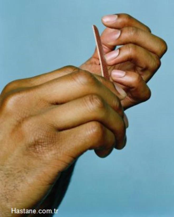 Bakımsız Tırnaklar:Kadınların erkeklerde ilk baktıkları yerlerden biri ellerdir. Bir erkeğin temiz elleri, diğer yerlerinin de temiz olduğu havası yaratarak kadının gözünde artı bir değere dönüşür. Eğri büğrü ve içinde siyah şeritler halinde kirler barındıran tırnaklarla bezenmiş bir eli hiçbir kadın tutmak istemez.