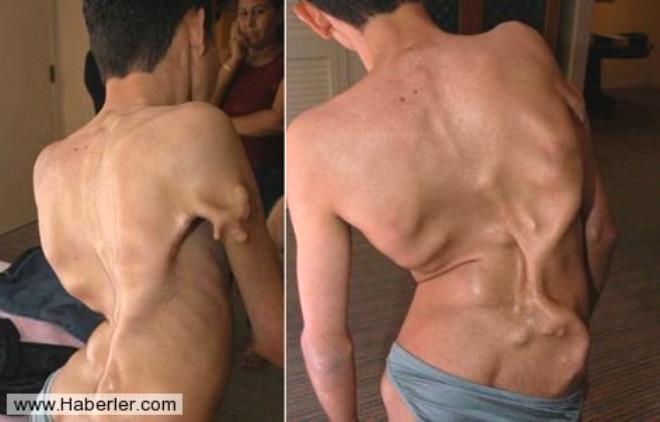 Vücuttakikasların kemiğe dönüşmesiyle meydana gelen nadir hastalıklardan biri.