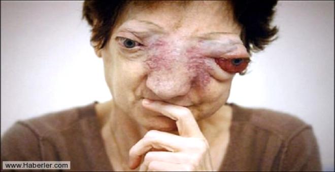 Nadir görülen tümör kaynaklı bir hastalık. Fransa