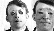 Dünyanın İlk Estetik Ameliyatları