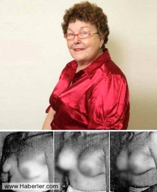 4.Timmie Jean Lindsey, Göğüs protezli ilk insan Silikon göğüs protezi operasyonu geçiren ilk kadın olan Lindsey daha sonra bu operasyonu geçiren iki milyondan fazla kadımım önünü açmış oldu. Dr. Thomas Cronin
