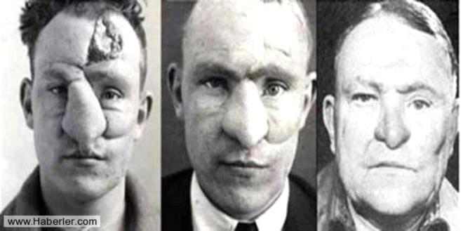 2.William M. Spreckley, Kayıtlara geçen ilk burun operasyonu Plastik cerrahiye öncülük eden kayıtlı operasyonlardan biri de Dr. Harold Gillies