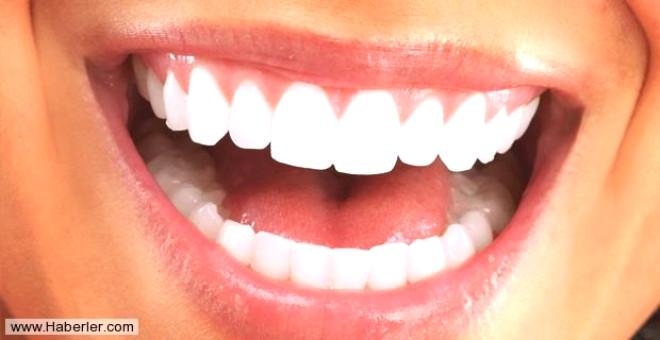 """Diş Hekimi Cansın Özgür, """"Ağız kuruluğu sıkıntısı tükürüğün kaliteli koruma ortamını bloke ederek her türlü ağız içi problemi oluşturmasına sebep olmaktadır ve çok ciddi bir sorundur. Eğer ki ağız kuruluğu problemi yaşıyorsak mutlaka bu problemi çözme yoluna gitmeliyiz"""" dedi."""