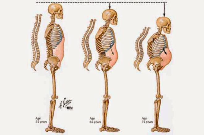 """Halk arasında """"kemik erimesi"""" olarak bilinen Osteoporoz, kemik dokusundaki yoğunluğun veya kitlenin azalması demektir. Birçok insan 20"""