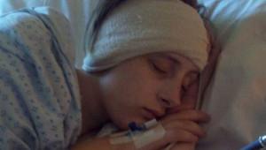 Yıllarca Çektiği Baş Ağrısını Migren Sanıyordu, Beyinciği Sarktı!