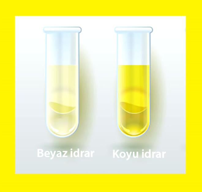 Normal açık sarı renk bir çeşit ürokrom adı verilen doğal pigmentten kaynaklanır. Ancak bu renk, idrar konsantrasyonun değişmesi yanında bazı yiyecekler, ilaçlar, metabolik ürünler ve enfeksiyon ile de değişebilir. Özellikle daha koyu sarı veya beyaza yakın ifadeleri çoğunlukla sıvı tüketim miktarı ile ilişkilidir. Yaz aylarında yetersiz sıvı tüketimi idrar renginin daha koyu olmasına, vücuttan daha az sıvı atılmasına neden olur. Bu aslında böbreklerin görevini iyi yerine getirdiğinin bir ifadesidir. Çeşitli nedenlerle sıvı tüketimi çok ise o zaman da idrar rengi daha beyaza yakın olacaktır.