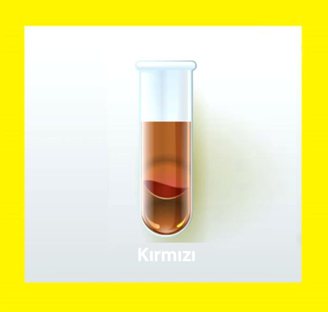 Kırmızı idrar öncelikle idrarda kan hücresi varlığını düşündürür ve hematuri olarak adlandırılır. Ancak hemen idrar analizi yapılarak bunun kan hücresinden kaynaklandığı gösterilmelidir. Çünkü kanama dışında bazı ilaçlar, bazı zehirlenmeler, ve bazı yiyecekler de idrarın rengini kırmızıya boyayabilir. İdrarda kanamanın dereceleri çok önemlidir.